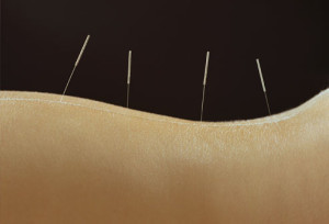 getty_rf_photo_of_acupuncture_needles_in_woman